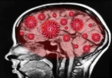 Ανησυχία από σοβαρές βλάβες στον εγκέφαλο σε ασθενείς με κορονοϊό