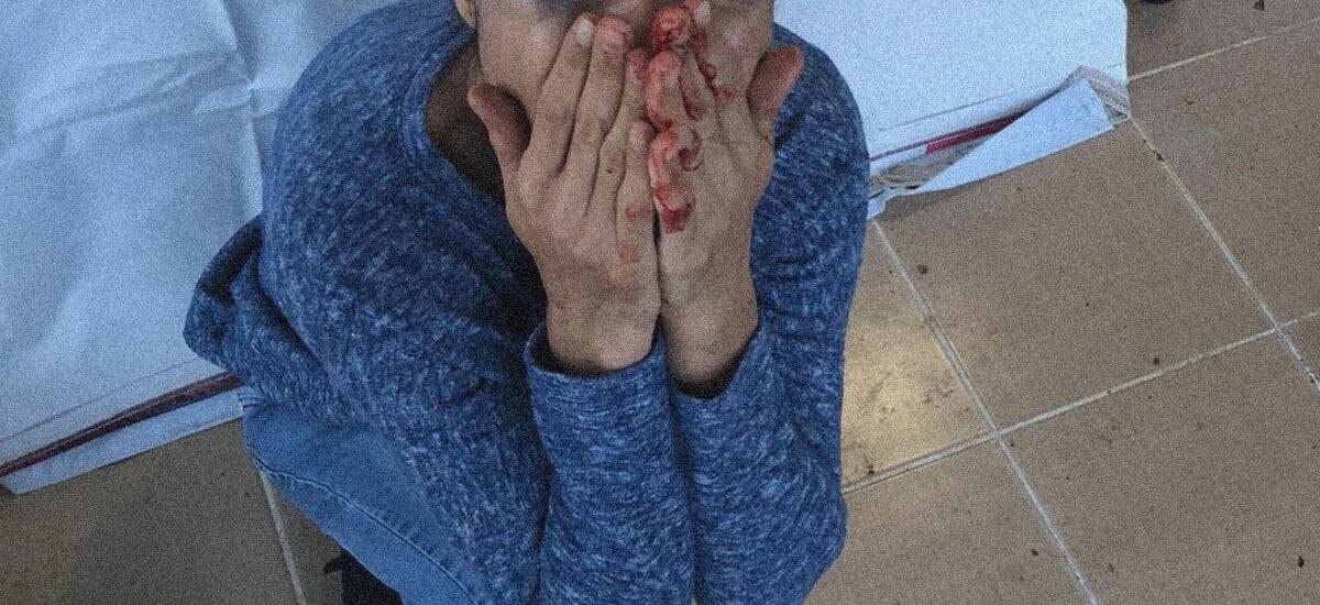 Melek İpek: Όταν η αντίσταση απέναντι στον δυνάμει δολοφόνο – γυναικοκτόνο σου ισοδυναμεί με φυλάκιση